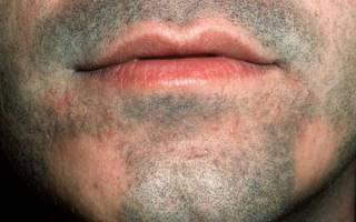 Алопеция на бороде у мужчин: как лечить выпадение волос, облысение и проплешины на подбородке, причины, профилактика