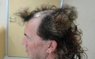 Наращивание волос мужчинам: какой способ наращивания выбрать, плюсы и минусы