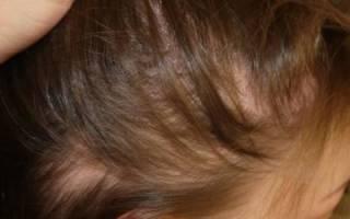 Алопеция или облысение — это когда сильно выпадают волосы