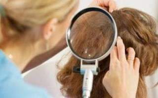Вши у ребенка: что делать, как лечить педикулез в домашних условиях, фото как выглядят вши и гниды в волосах у детей