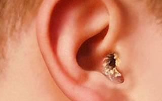 Перхоть в ушах: причины шелушения кожи, лечение, как избавиться от сухих корочек, белых хлопьев в ушной раковине, фото