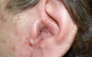 Себорейный дерматит в ушах: лечение мазью, фото, профилактика себореи ушных раковин, аптечные лекарства и народные средства
