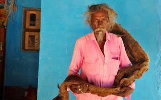 Житель Индии 40 лет не мыл и не расчесывал волосы