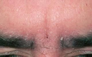 Как бороться с перхотью у мужчин: причины появления, шелушение кожи на бровях, перхоть в бороде, на голове, как вылечить болезнь народными средствами или лекарствами