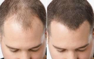 Загуститель для волос (камуфляж): toppik, fully, спрей caboki и другие средства убрать, скрыть и замаскировать залысины на лбу у мужчин, отзывы