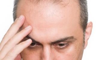 Алопеция (облысение) у мужчин, причины и лечение выпадения волос у мужчин